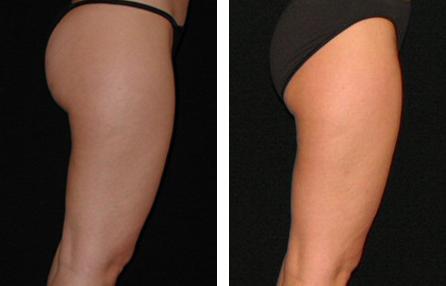 Kirn Plastic Surgery Center - Body Photos - Liposuction