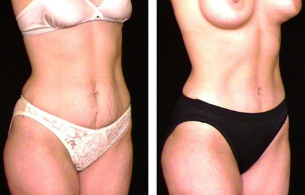 Augmentation breast tuck tummy